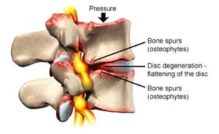 Degenerativna bolest diska
