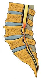 Stenoza spinalnog kanala – suženje kralježničkog kanala