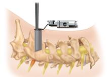 Vratna foraminotomija