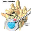 Endoskopska foraminotomija