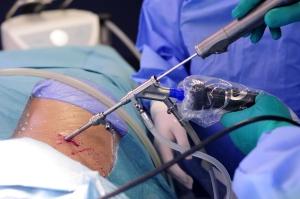 Selektivna endoskopska discektomija