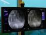 Laserska operacija kralježnice