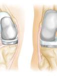Učestali uzroci boli u koljenu i gubitka funkcije koljena