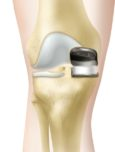 Djelomična endoproteza koljena (unikomplementarna)