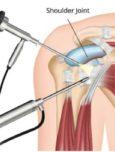 Artroskopske operacije ramena