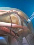 Regeneracija oštećene hrskavice u ortopediji – mit ili realnost?